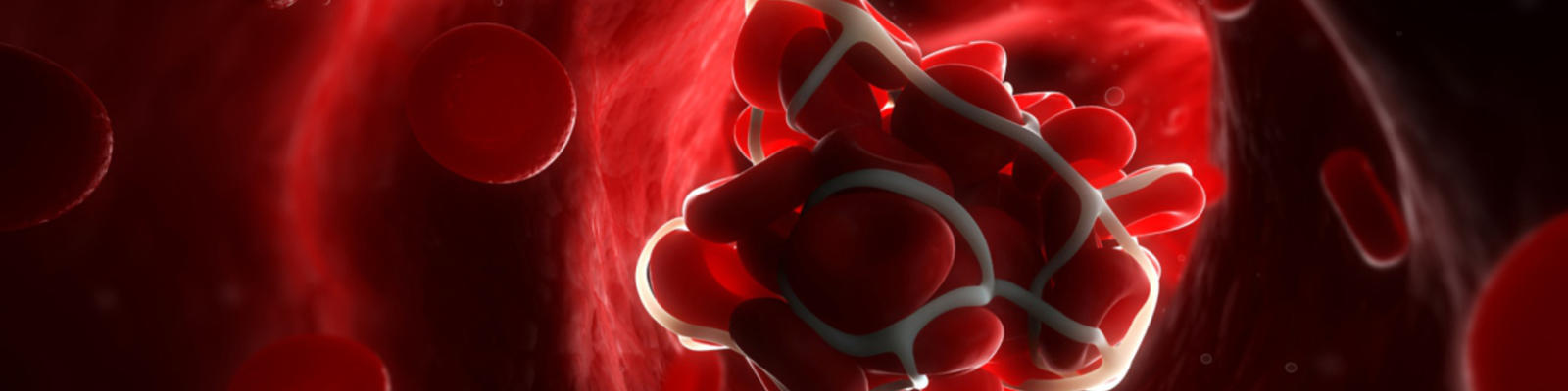 A computerised render of a blood clot in the bloodstream